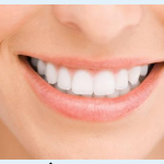 Free Smile Bright Teeth Whitening Strips from Savemore!
