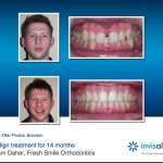 Invisalign for Teens AND Adults!
